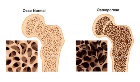 Como evitar a osteoporose