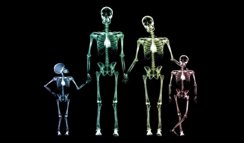 Prevenção da osteoporose começa na infância